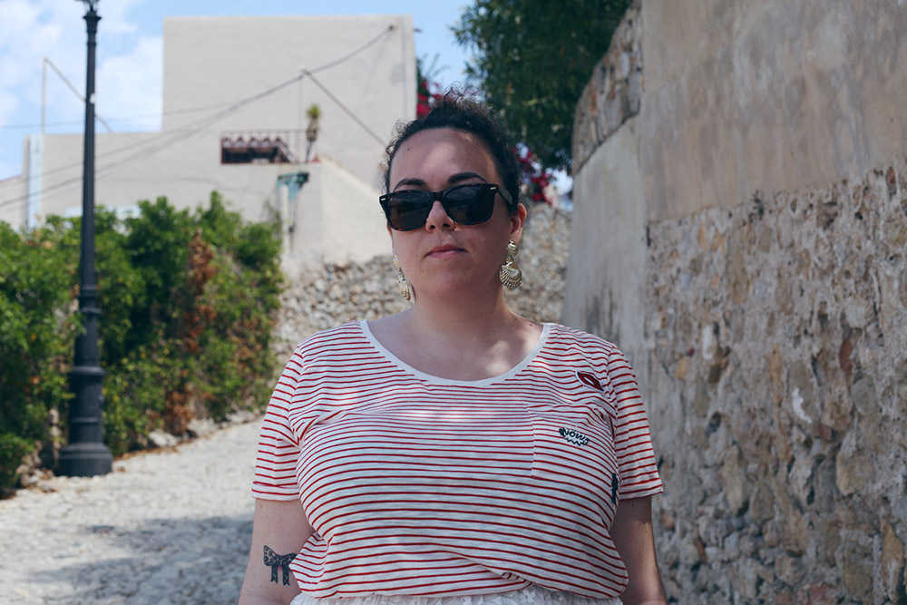 Falda de encaje y camiseta rayas-2
